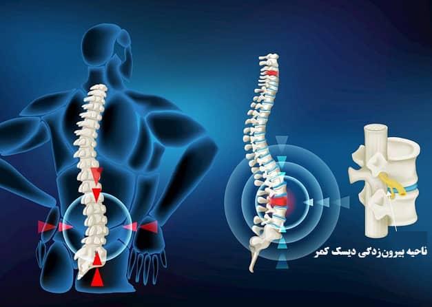 بهترین درمان دیسک کمرخفیف و شدید فیزیوتراپی و درمانهای غیرتهاجمی