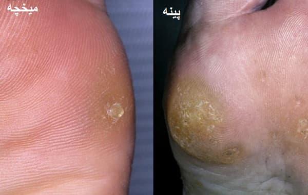 تفاوتهای میخچه و پینه پا