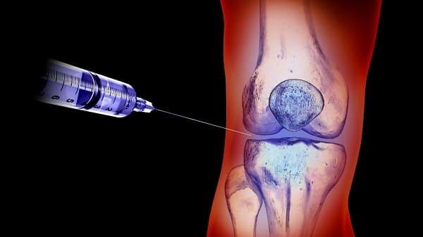 تزریقات برای تقویت ویسکوز