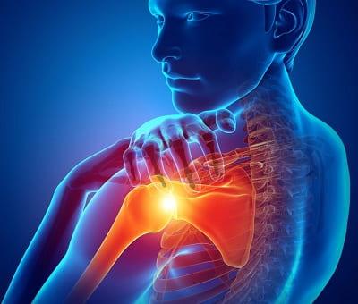 درد کشیدگی و التهاب تاندون شانه
