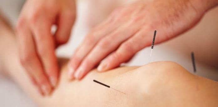 طب سوزنی برای درمان آرتروز زانو
