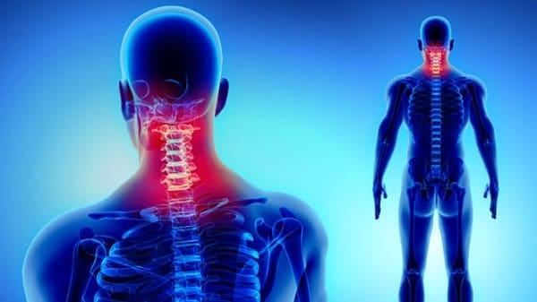 فرق دیسک گردن با آرتروز گردن چیست