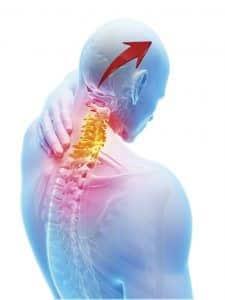 منابع مشترک درد در سردردهای گردنی