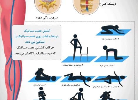 ورزشهایی برای درمان درد و گرفتگی عصب سیاتیک