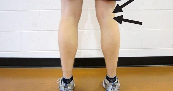 10 نمونه از متداولترین عوامل احتمالی درد پشت زانو هنگام راه رفتن