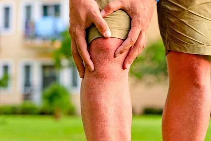 درمان آرتروز زانو (ساییدگی مفصل زانو)