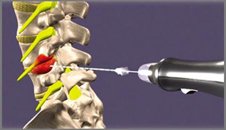 درمان درد گردن با اوزون درمانی