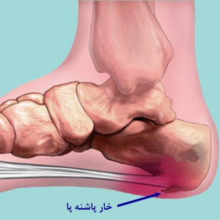 خار پاشنه پا چیست؟