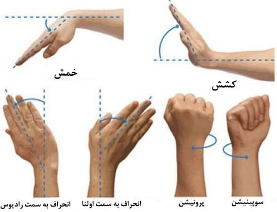درمان مچ درد با روش های طب فیزیکی