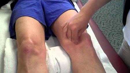 علل در رفتگی کشکک زانو