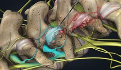 تزریق در مفصل فاست برای درمان دیسک کمر