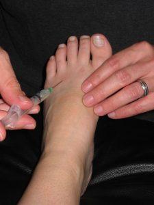 درمان بی حسی پا با تزریق الکل
