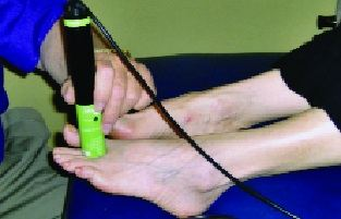 درمان موروتون نوروما با لیزر سرد