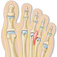 علت درد و گزگز سینه پا