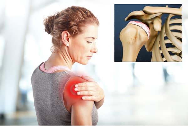 درمان آرتروز شانه